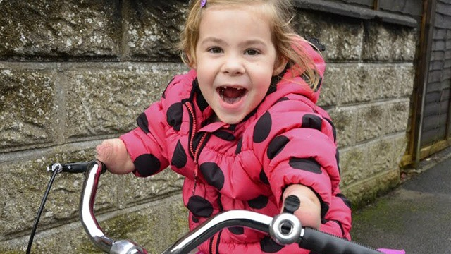 bravest girl The bravest girl on three wheels: sheer delight of five-year-old who survived meningitis as she enjoys tricycle she wanted for christmas brave charlotte nott, five, lost all limbs below the joint .