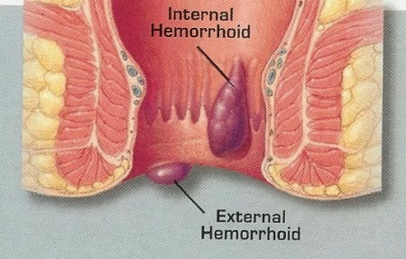 How To Soothe Pain Caused By Hemorrhoids Onejive Com