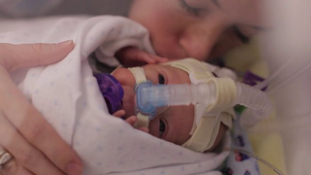 A Premature Baby's First Year On Earth - Amazing VIDEO