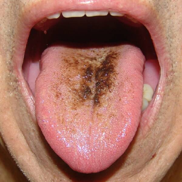 """""""Black tongue"""" is an existing health problem - see what can cause the disease"""