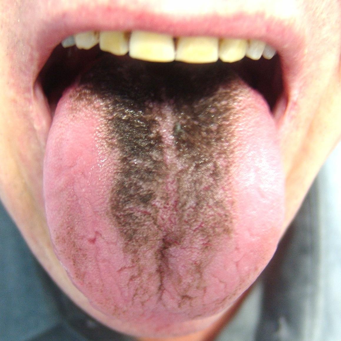 Black_Hairy_Tongue1.jpg