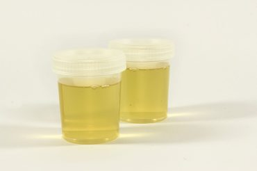 urine-color.jpg